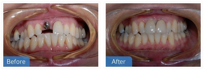 Dental Implants 01 - Implants
