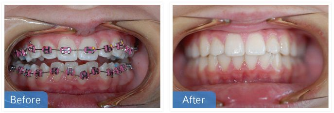 Orthodontic dental work, South Auckland