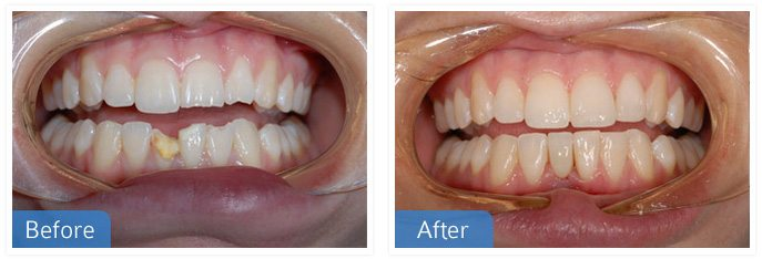 Urgent Dental Treatment - Urgent Treatment