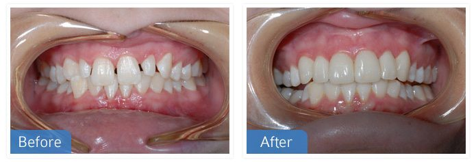 General Dentistry Before After