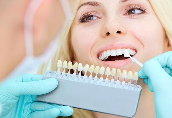 Auckland Teeth Whitening