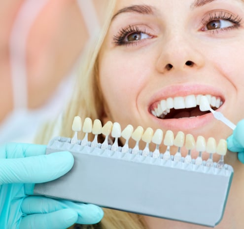 veneers - Veneers & Crowns